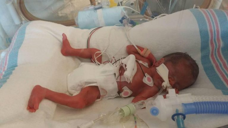 OMG!!! 1 Pound Baby Born Four Months Early On Cruise Ship Survives (Photos)