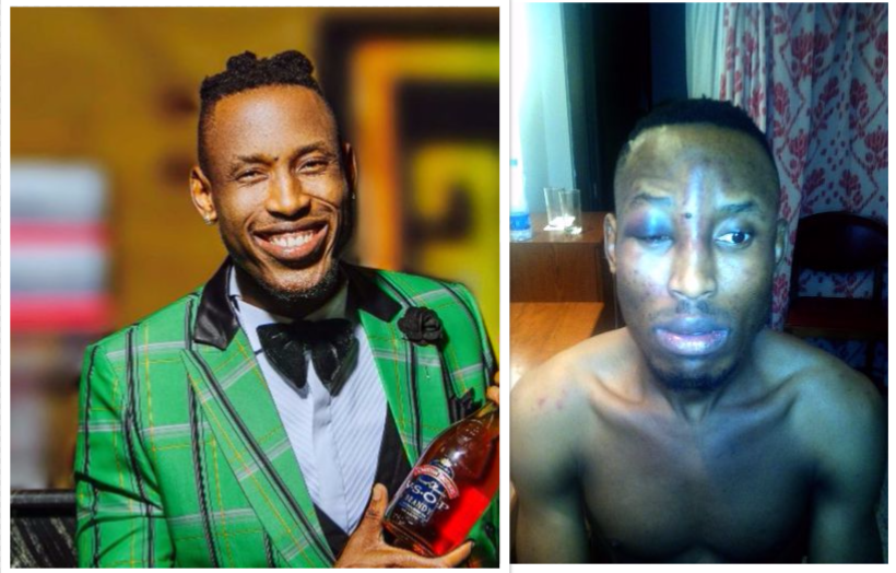 Mr 2Kay Beaten Mercilessly by Armed Robbers Who Invaded His Hotel Room During 2face's Show at Eko Hotel