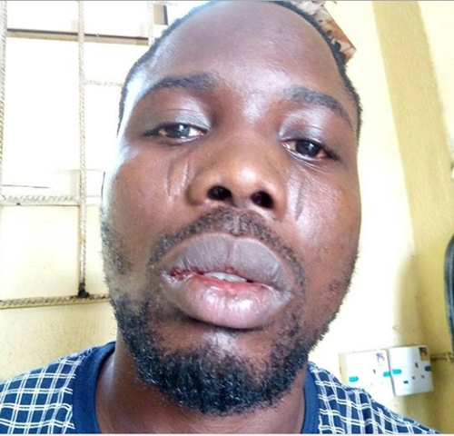 How SARS Officers Allegedly Brutalized Eko FM Staff and Siblings in Lagos (Photos)