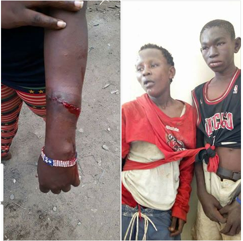 13-Year-Old Robbers Beaten Mercilessly After Injuring A Female Victim {Photos}