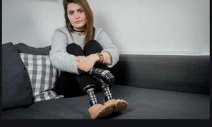 Woman Loses Leg Due To Medical Blunder(photos)