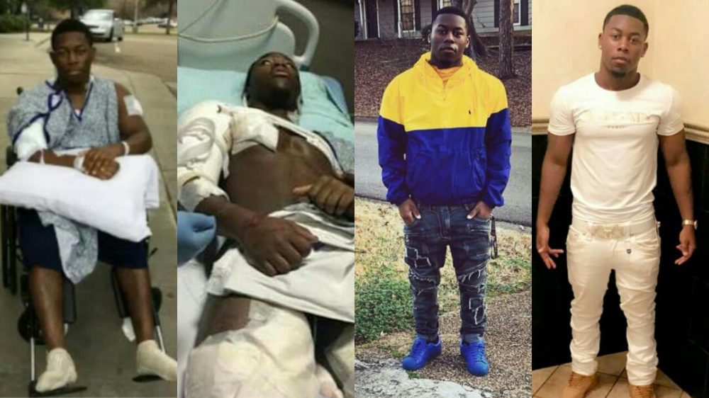 Meet the 17-Year-Old Boy Who Survived After Being Shot 22 Times, Narrates his story
