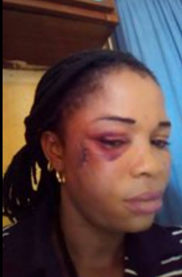 Man Who Took His Wife To Swear An Oath Over Sex Allegedly Brutalizes Her (Photos)