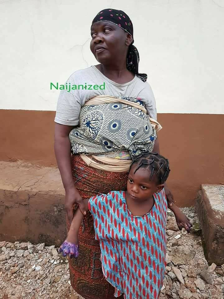 See What A Woman Did To Her Grandchild For Eating Indomie Against Her Wish (Graphic Photos)