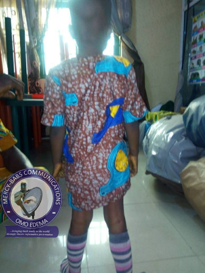 Parents Lament Over Their 4-Year-Old Child Who Was Born A Hermaphrodite (Photo)