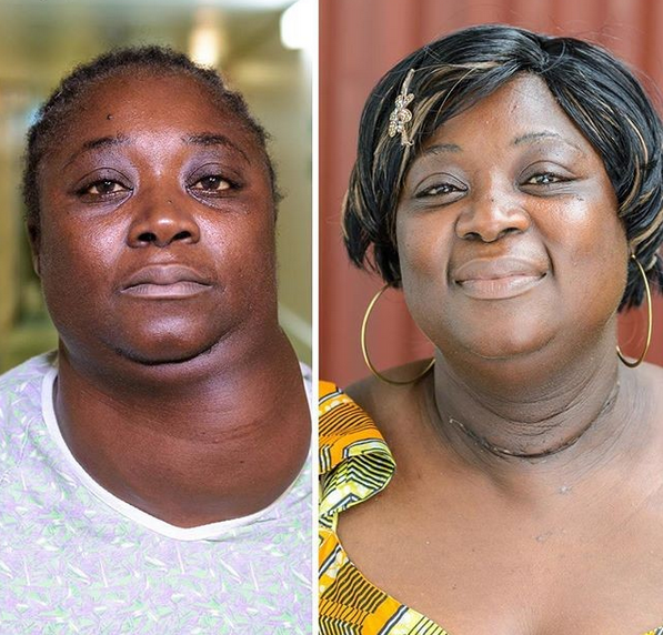 Woman All Smiles After Undergoing Surgery To Remove Huge Goiter Of 10 Years (Photos)