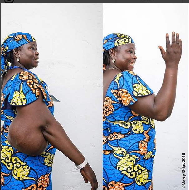 Woman Who Underwent Surgery To Remove Huge Tumour, Shows Off Her Arm (Photos)