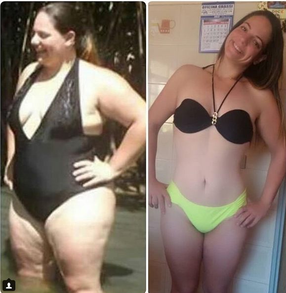 Social Media Star Shows Off Results Of Her Incredible Weight Loss After Surgery (Photos)