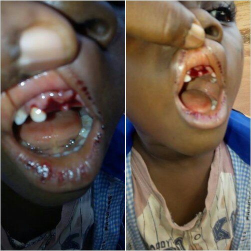 See What A Teacher Did After Breaking 4-Year-Old Boy's Teeth (Graphic Photos)
