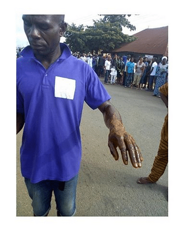 #EkitiDecides2018; Party Agent Doused With Acid At A Polling Unit (Photo)