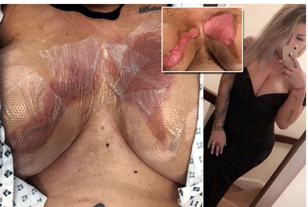 Lady Left In Agony After Her Fake Boobs Were Melted By Hot Water (Graphic Photos)