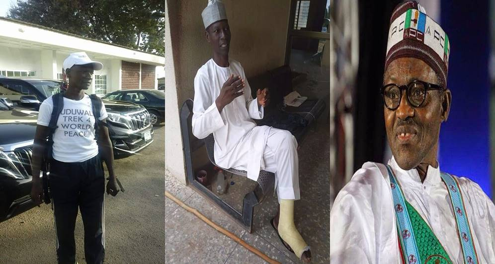 Man Who Trekked From Yola To Abuja In Celebration Of Buhari Develops Leg Injury (Photos)