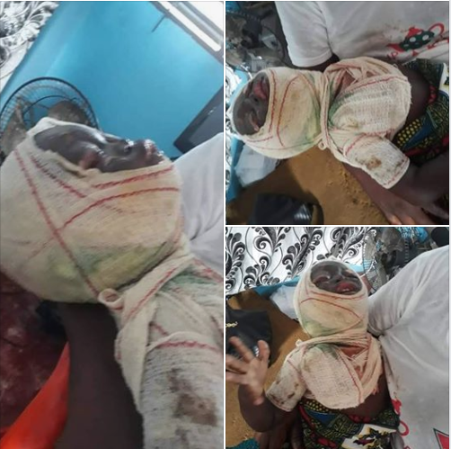 Little Girl Burnt After Falling Into Her Mother's Pot Of Food (Photos)