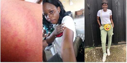 Principal Flogs Brutally Female Corps Member In Akwa Ibom