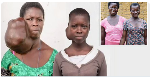 See New Transformation Of Mother And Daughter With Identical Facial Tumors