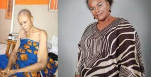 Nollywood Actress, Ify Onwuemene Begs For Help As She Battles Cancer