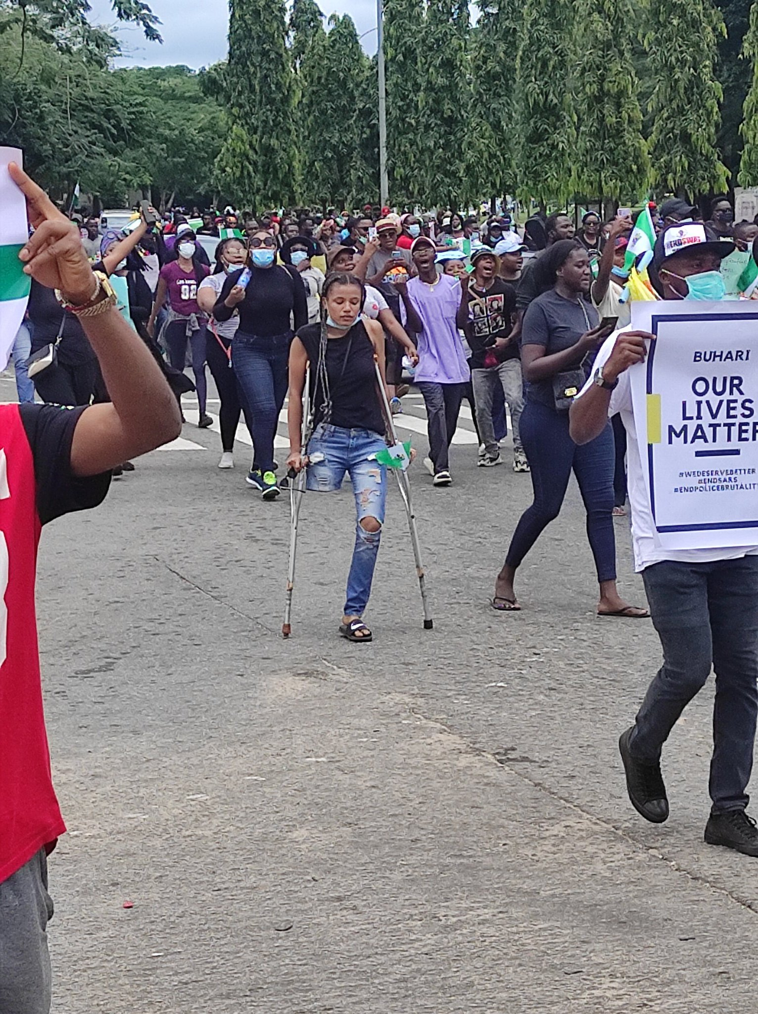 Nigeria youths donate N4.1 million to buy Prosthetic leg for a  Protester